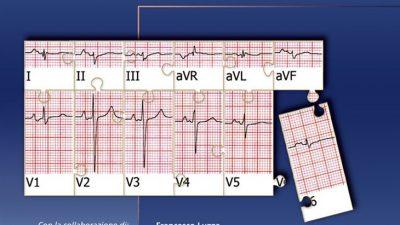 L'elettrocardiogramma: un mosaico a 12 tessere