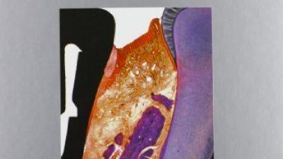 Parodontologia clinica e implantologia orale